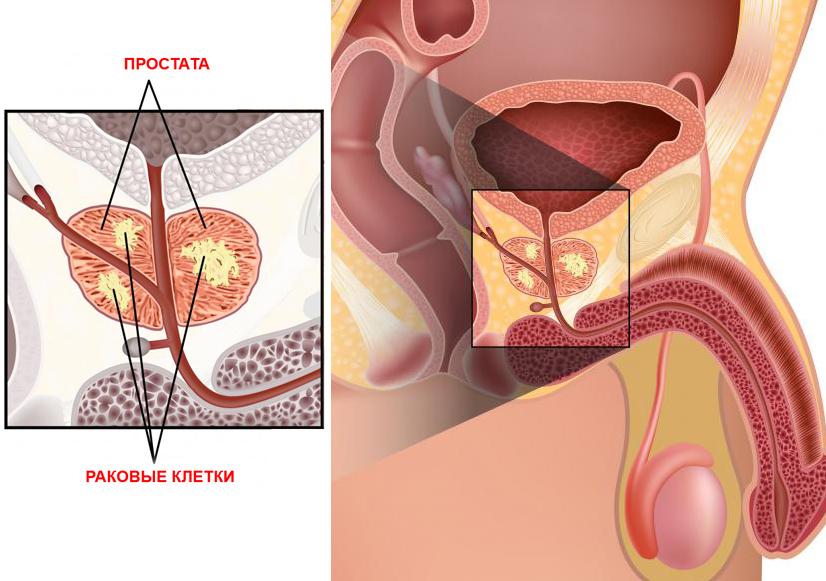Как пользоваться дарсонвалем от простатита
