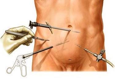 Методика лапароскопическоого удаления аденомы предстательной железы