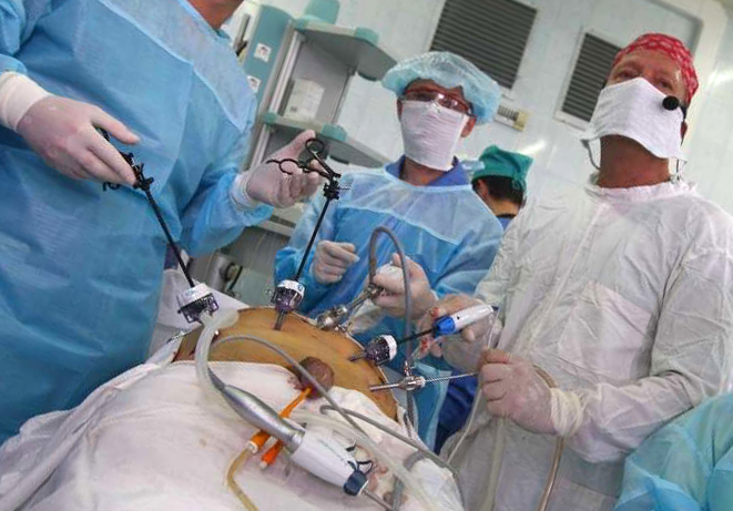 Операция по лапароскопическому удалению аденомы простаты