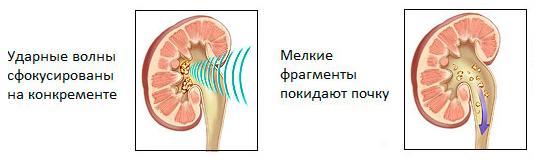 Ударная литотрипсия