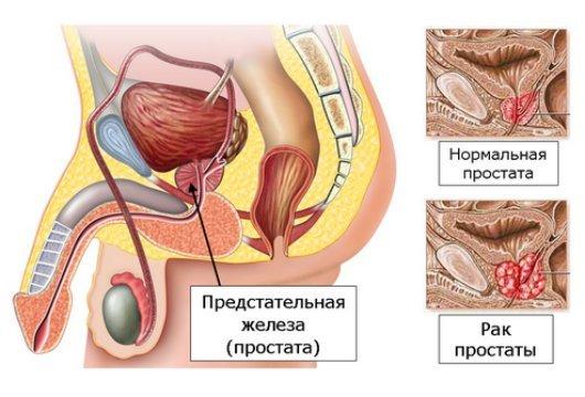 показания к простатэктомии - рак простаты