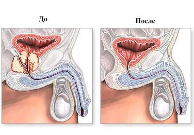 после операции простатэктомия