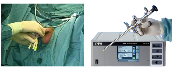 методика проведения операции ТУР