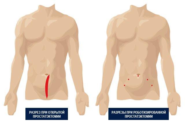 виды операций простатэктомиИ