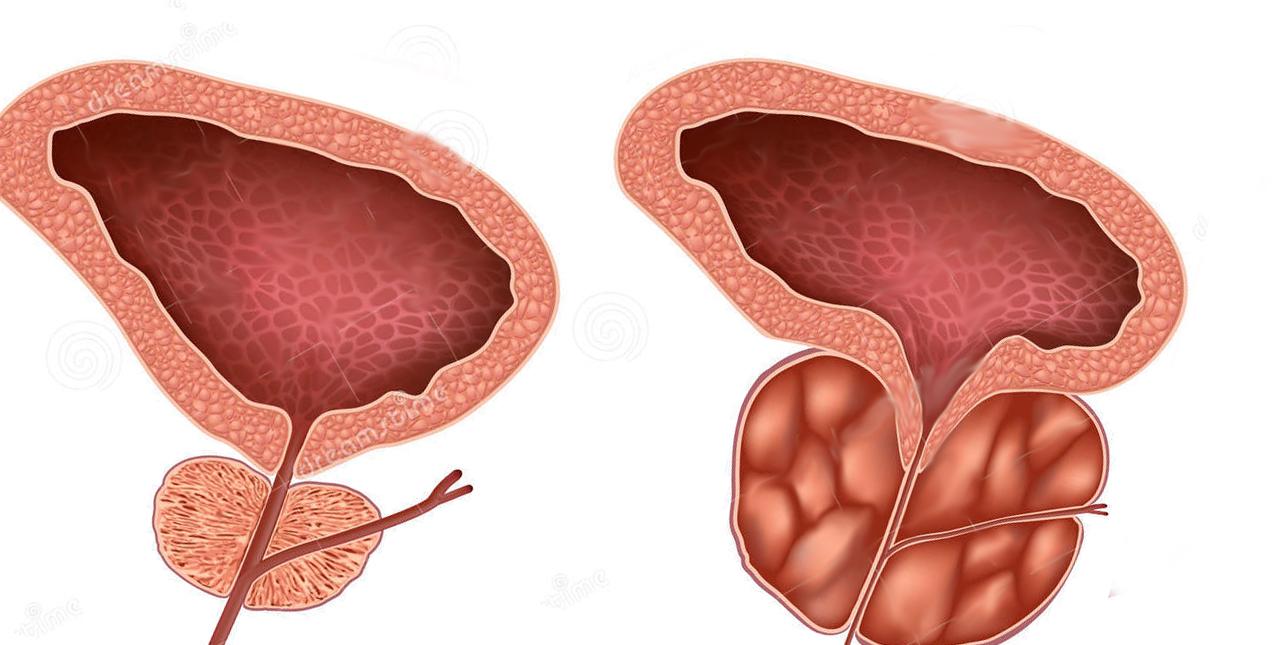 Лечение простатита аденомы простаты