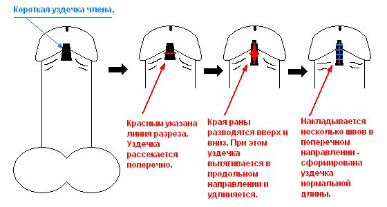Операция по пластике уздечки полового члена