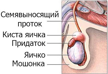 Как образуется киста на яичке