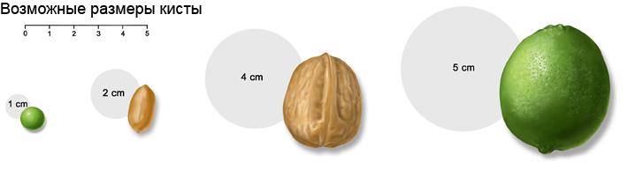 Размеры кисты