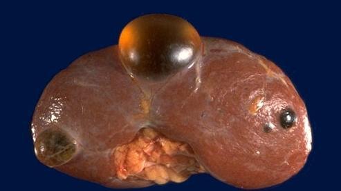 Опухолевидные образования на почках