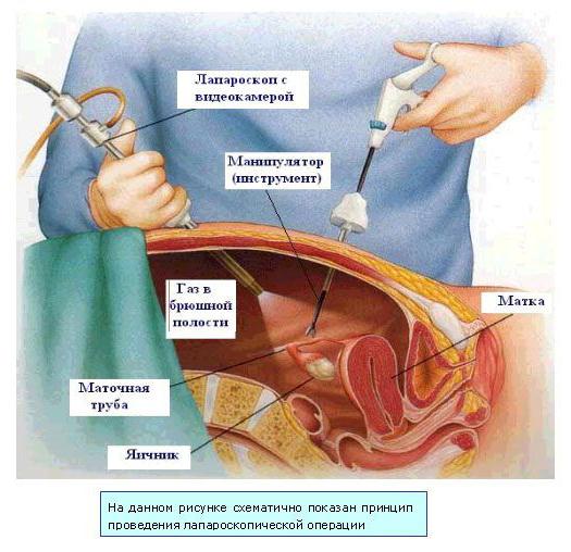Лапарпоскопические методы лечения
