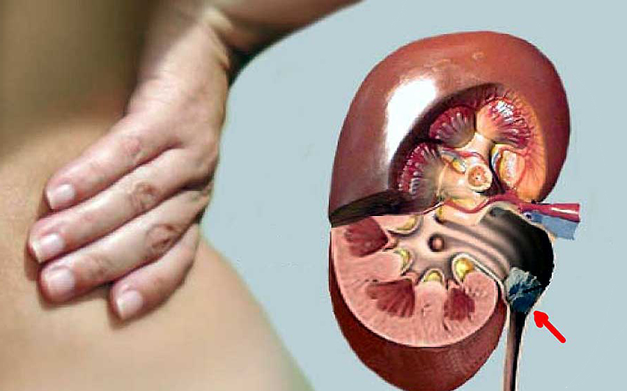 Подскажите как лечить эндометриоз