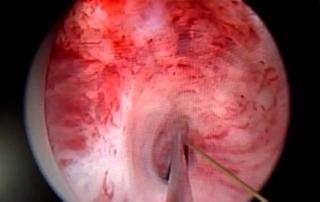 Анастомотическая пластика уретры - мышцесберегающая
