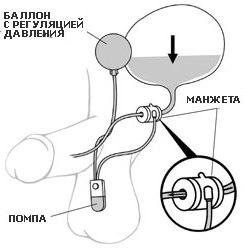 Искусственный сфинктер мочевого пузыря