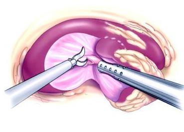 хирургическое вмешательство при опухоли в почке