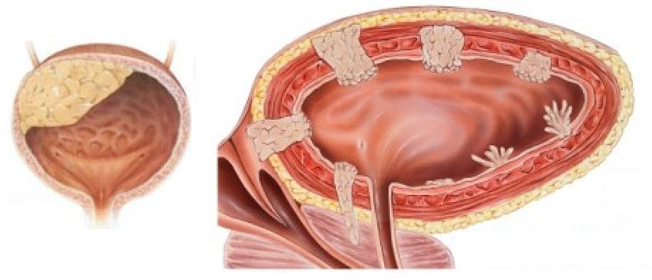 Злокачественное новообразование мочевого пузыря