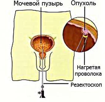 Операция на мочевом пузыре