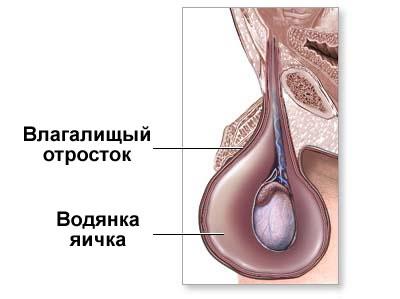 Водянка яичка
