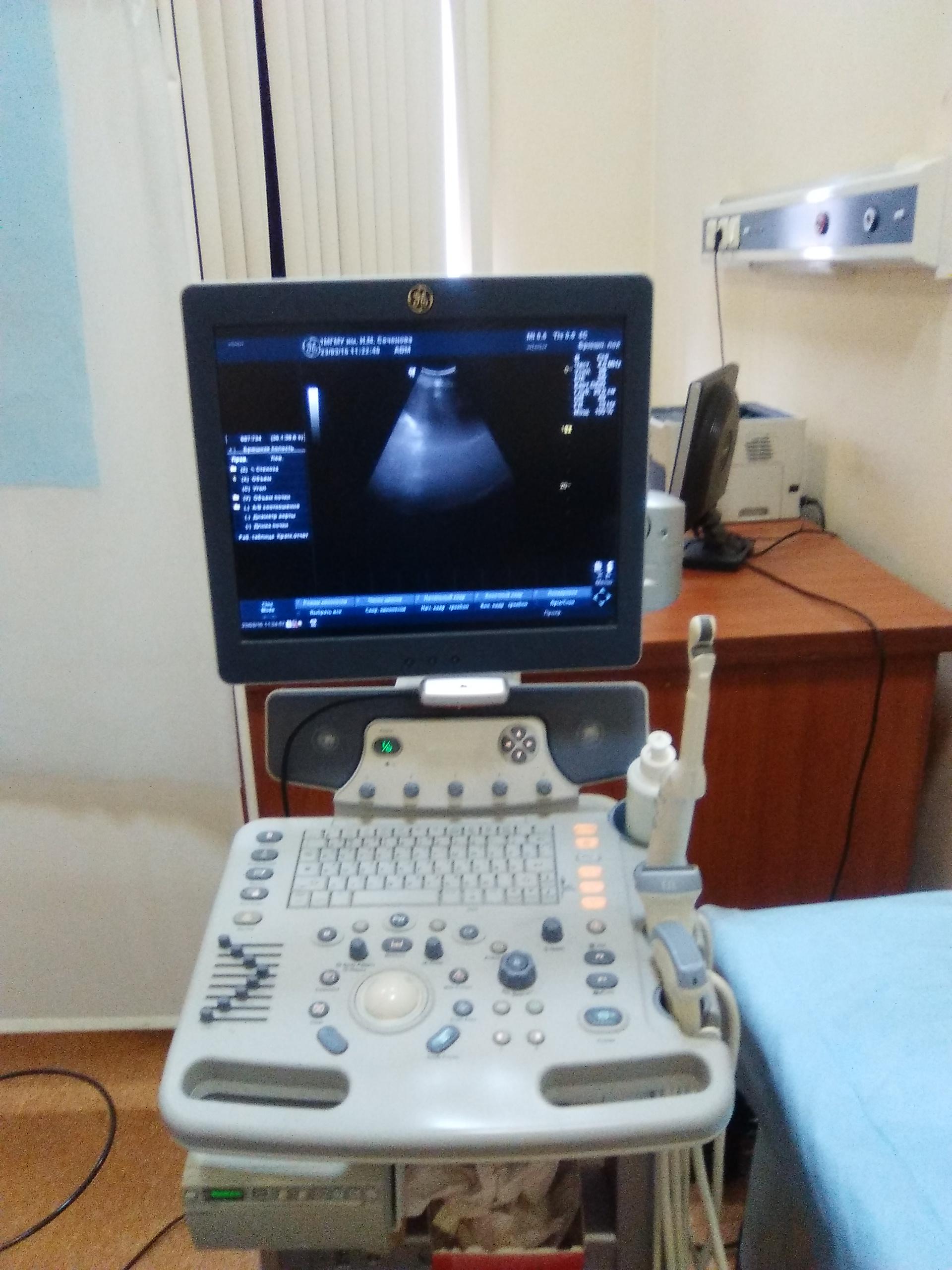 Аппарат ультрозвукового исследования