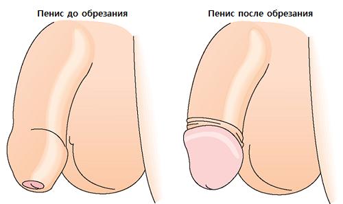 Вид пениса после обрезания