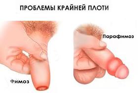 Защемление плоти головки у ребенка фото