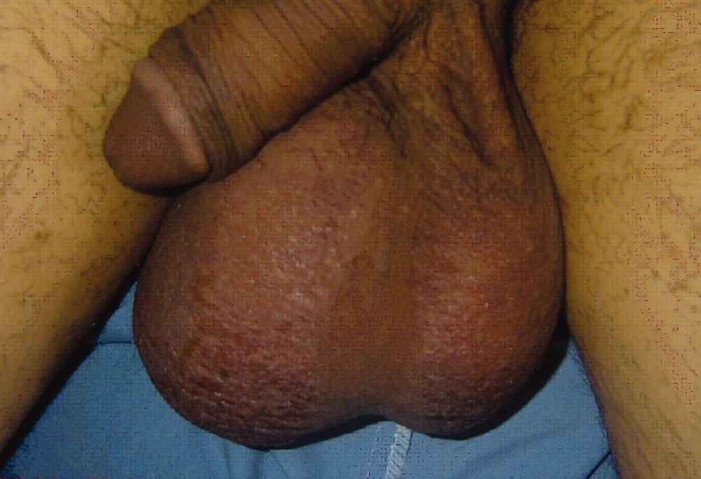 Увеличение яичек может быть признаком серьезного заболевания