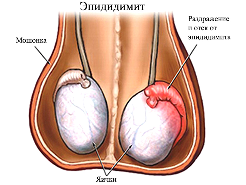 Увеличение яичек при опухоли