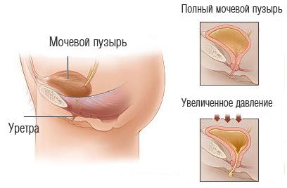 Причины гиперактивноости мочевого