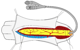уретропластика