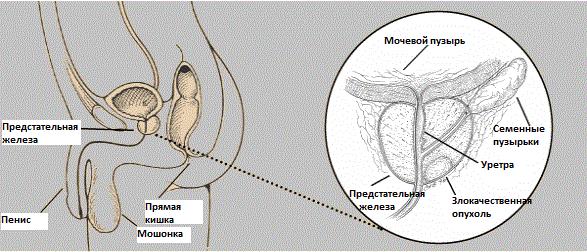 ДГПЖ предстательной железы