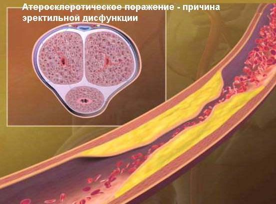 Атерослеротическое поражение сосудов половых органов