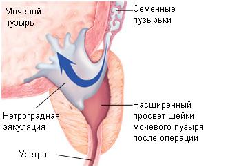 Один из видов нарушения эякуляция